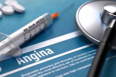 Estudo indica que Stent não melhora sintomas de angina estável