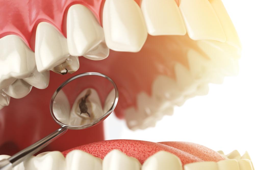 Cárie dentária: origem multifatorial com componente genético?