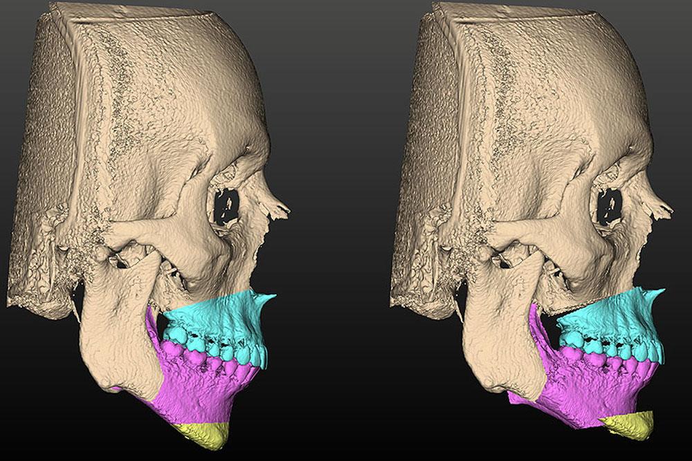 Estudo refina técnica para diagnóstico e tratamento de deformidades dentofaciais