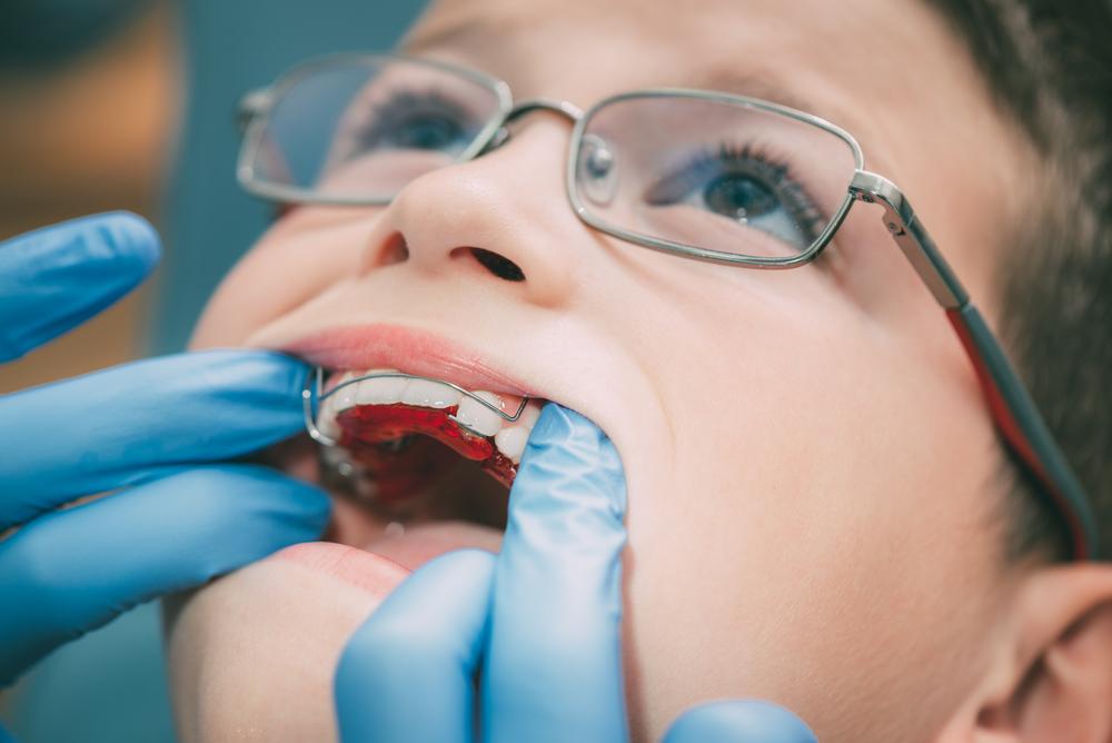 Falta de orientação atrasa primeira visita da criança ao Cirurgião-Dentista