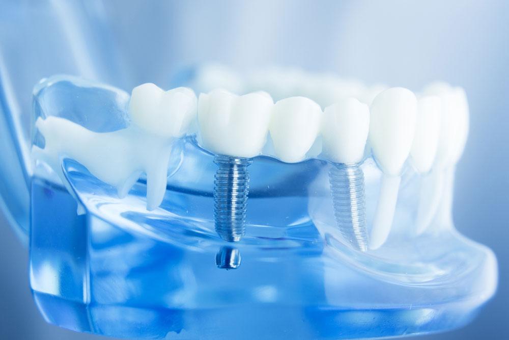 Relatório diz que mercado mundial de implantes deverá crescer 7,9% por ano