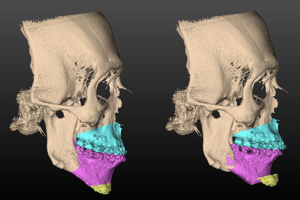 Tecnologia digital para diagnóstico e tratamento das deformidades dentofaciais
